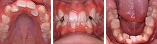 [画像]乱杭歯治療前