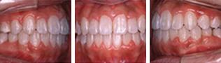 [画像]乱杭歯治療後