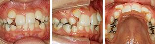 [画像]小児:乱杭歯治療前