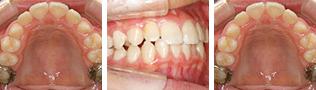[画像]小児:乱杭歯治療後