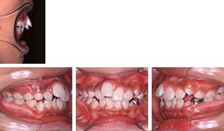[画像]小児:出っ歯治療前