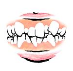 [イラスト]乱杭歯