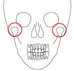[イラスト]顎関節症(がくかんせつしょう)