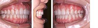[画像]顎関節症治療後