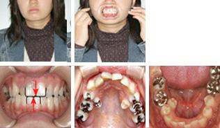 [画像]顎偏位症治療前