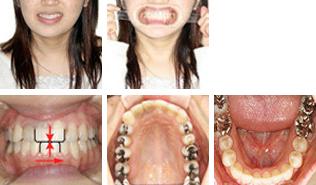 [画像]顎偏位症治療後