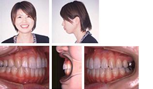 [画像]出っ歯治療後