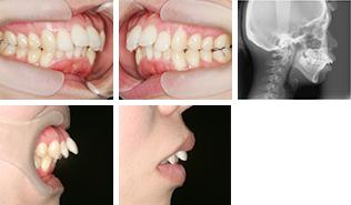 [画像]出っ歯治療前