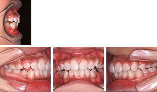 [画像]小児:出っ歯治療後