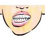 [イラスト]顎偏位症(がくへんいしょう))